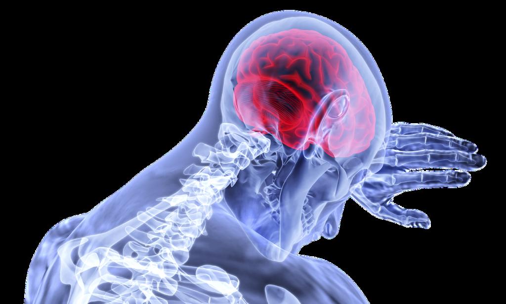revalidatie na beroerte CVA - skelet hand tegen hoofd - hersenen